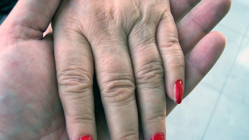 How to Get Rid of Knuckle Wrinkles
