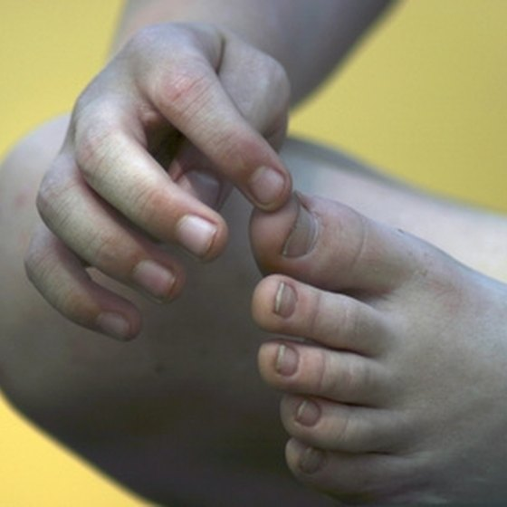 Recognize the Signs of Gout