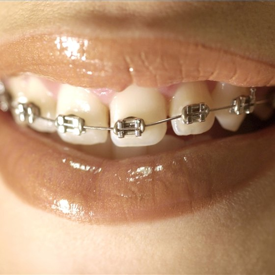 Prevent White Spots From Braces
