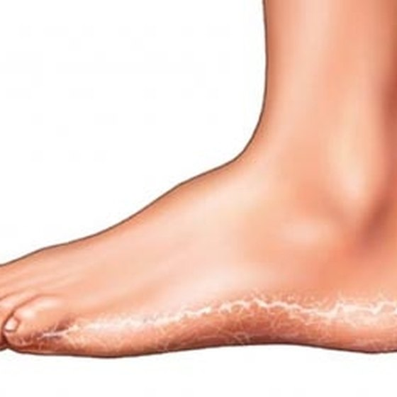 How to Get Rid of Foot Fungus | Healthy Living