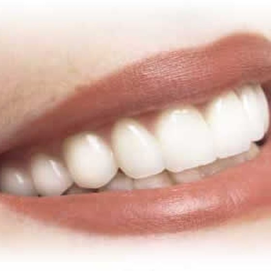 Clean dental implants regularly