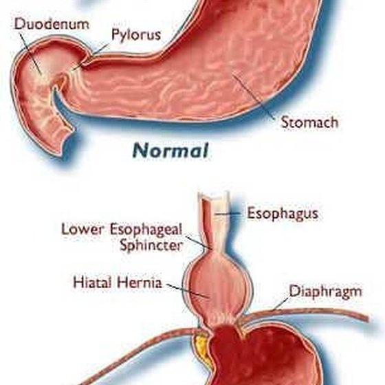 Symptoms of High Hernia