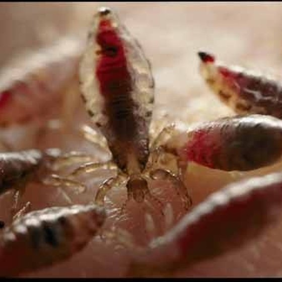 Body Lice