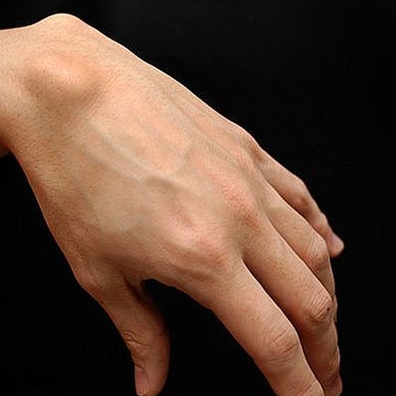 Know if Hand or Wrist Pain is a Ganglion Cyst