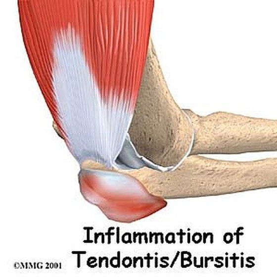 Inflammation of Bursa