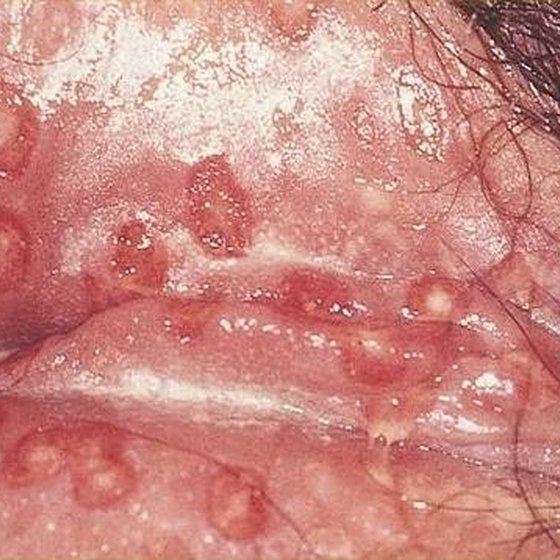 Herpes Cyst Symptoms