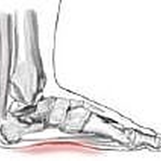 Pain in the arch of the foot.