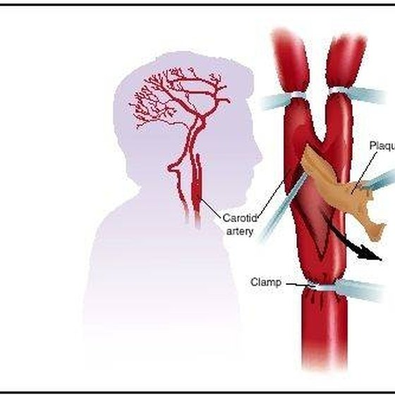 Location and detail of carotid artery.