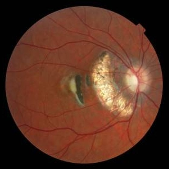 X-ray of a human eye showing interior scar tissue from a detached retina.