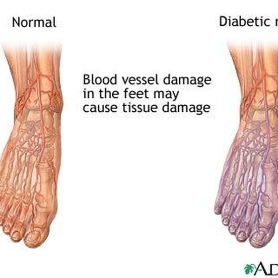 Reasons for Poor Circulation in the Feet