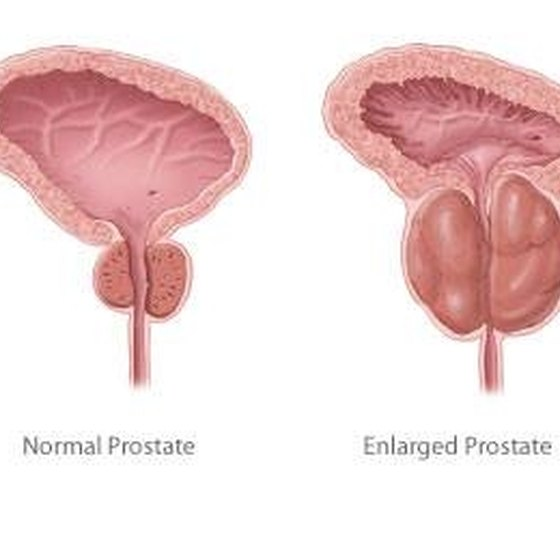 Side Effects of Laser Prostate Surgery