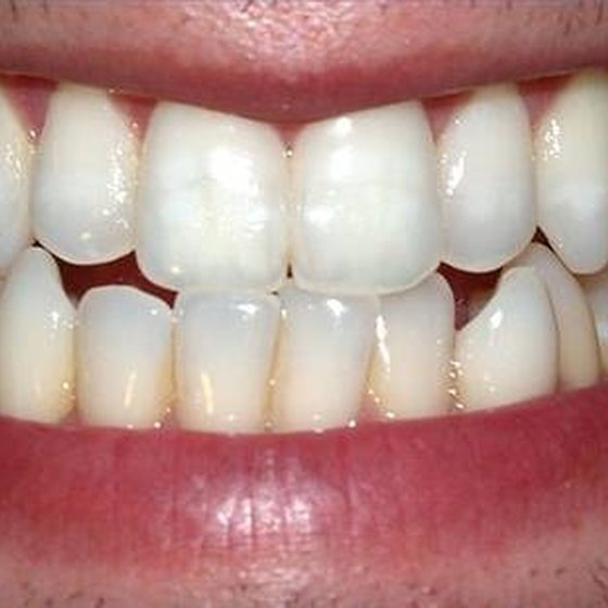 Problems With Tooth Implants