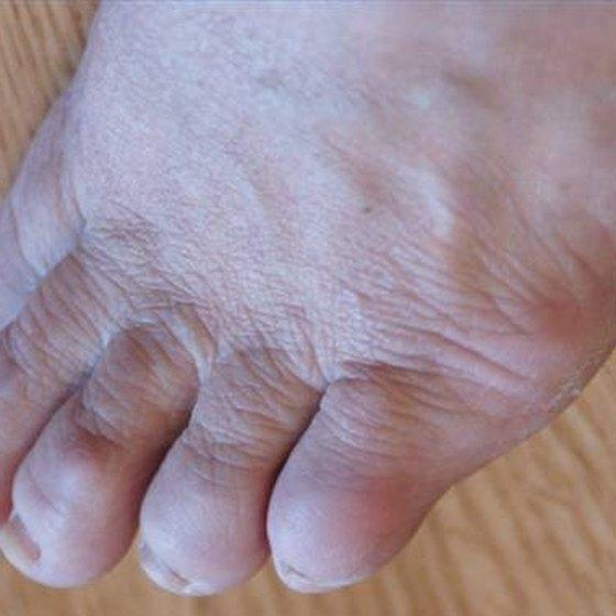 Remove Foot Corns