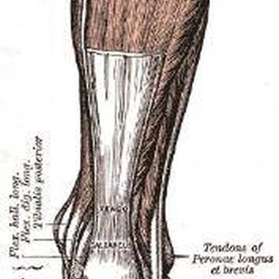 Treatment for an Achilles Tendon Bone Spur