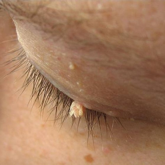 Filiform wart on eyelid
