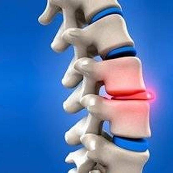 Signs & Symptoms of a Bulging Disk