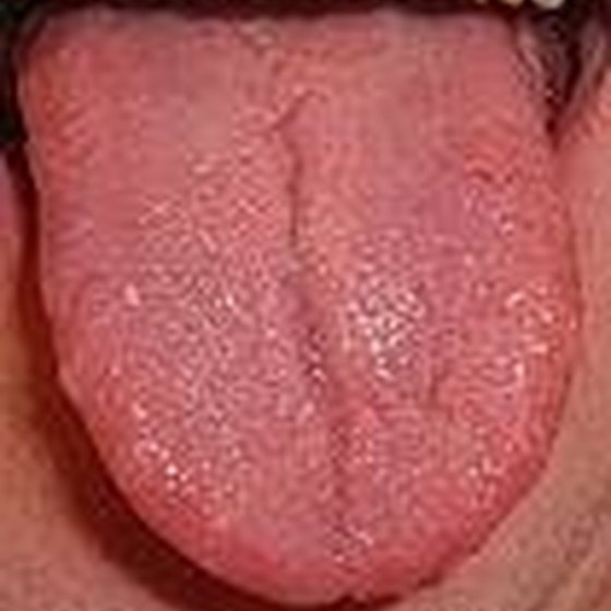 Medical Conditions That Affect the Tongue