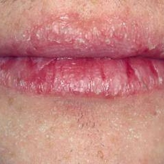 What Causes Cracked Split Lips?