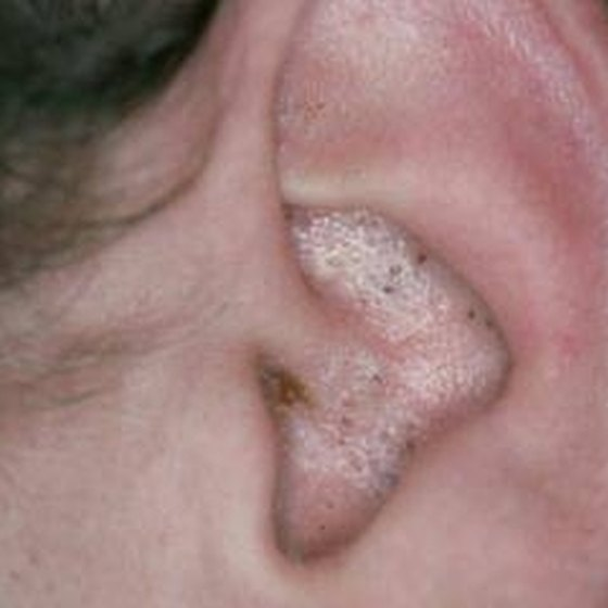 What Causes Blackheads in the Ears?