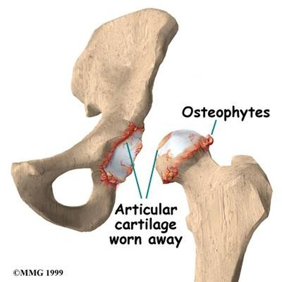 Left untreated, bone spurs can cause an immense amount of pain and even lead to the degradation of muscle in and around the bone.