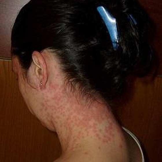 Different Type of Skin Rashes