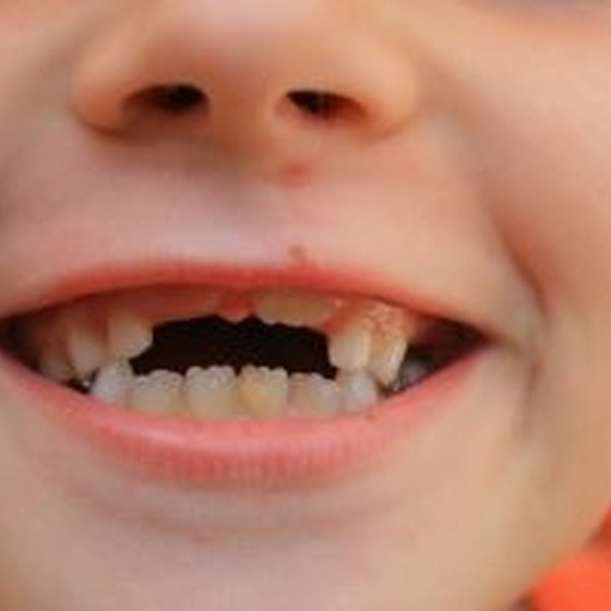 At What Age Do Children Lose Their Teeth?