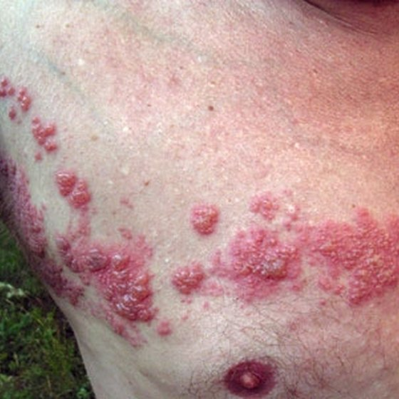 Why Do I Have Recurring Shingles?