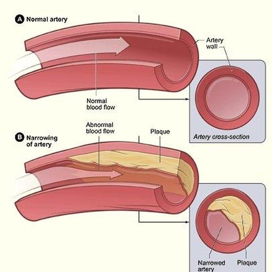 Blocked Artery Symptoms & Blood Vessels
