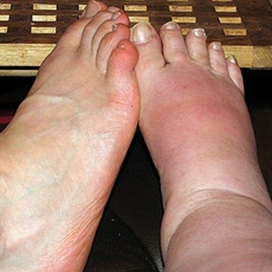 Swollen Foot Problems