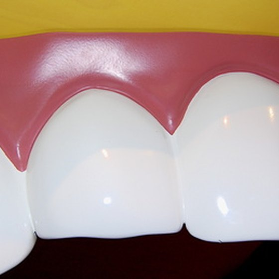 An occlusal splint is used to treat teeth grinding.
