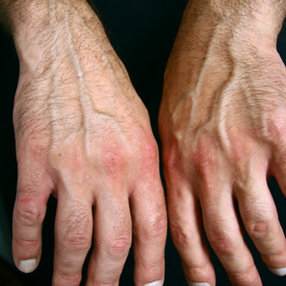 Painful joints caused by spider bites are a symptom of concern.