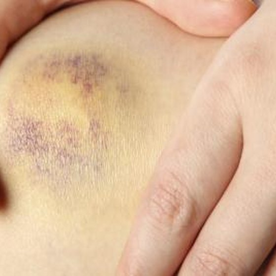There are a number of reasons why you might experience knee bruising and pain.