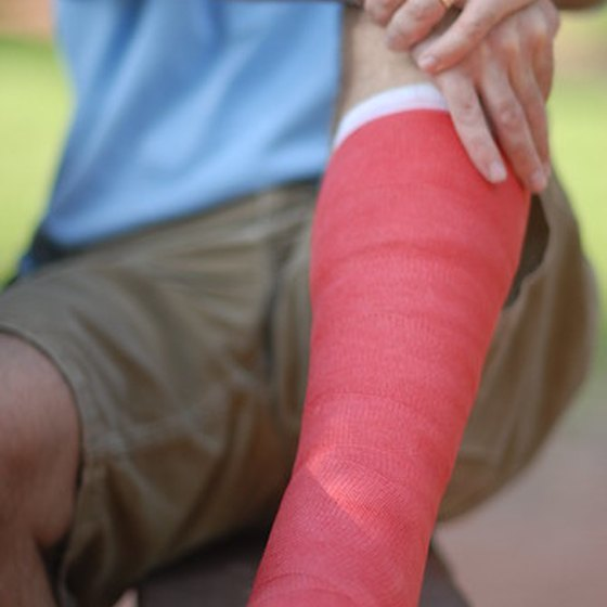 Orthopedists help fix broken bones.