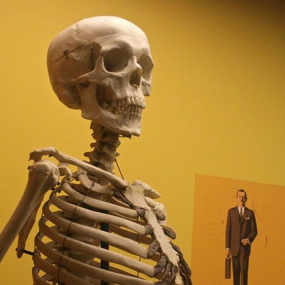 Calcium deposits can harden the bones and tissue.