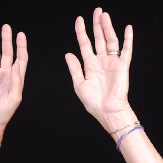 Eczema can affect the hands.