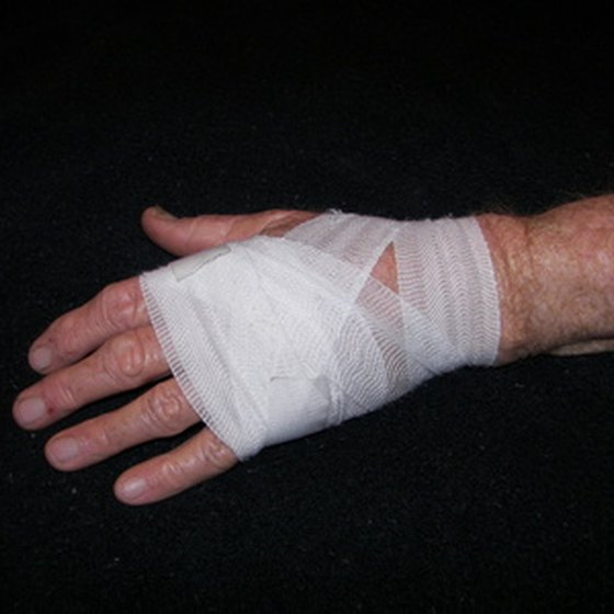 Bandaging the wound is necessary after applying Santyl ointment.
