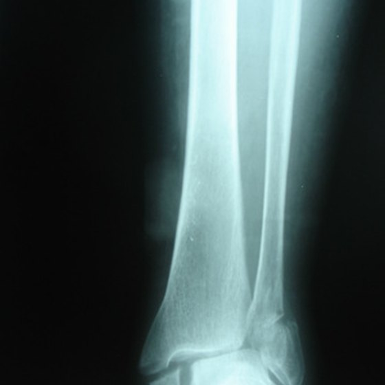Ankle fractures may need a cast or brace in order to heal properly.
