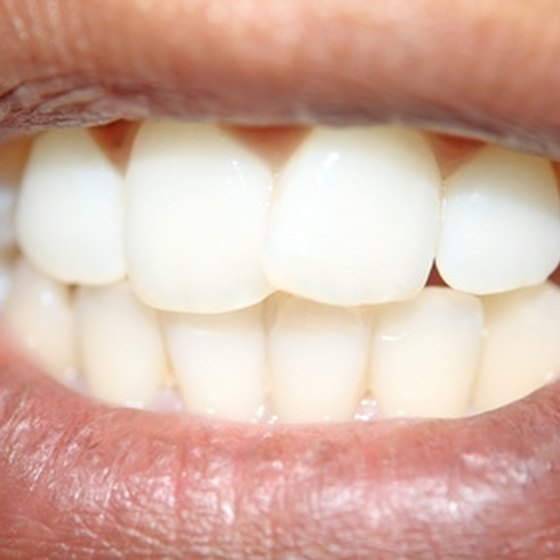 Mouthpieces are used to straighten teeth without braces.