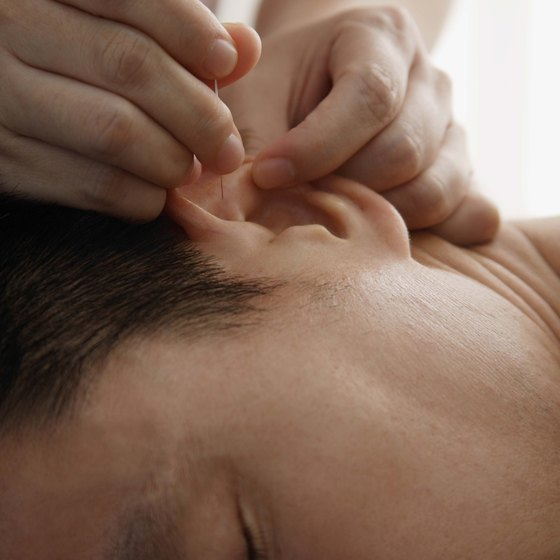 Acupuncturists must help prospects in their target market learn the benefits of their services.