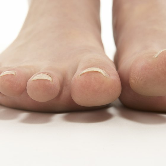 Exfoliate and moisturize your feet to prevent scales, cracks and dry skin.
