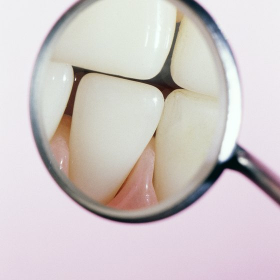 Tooth enamel is the visible part of your teeth.