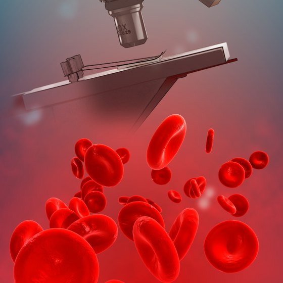 Red blood cells get their ruddy color from the iron in hemoglobin.