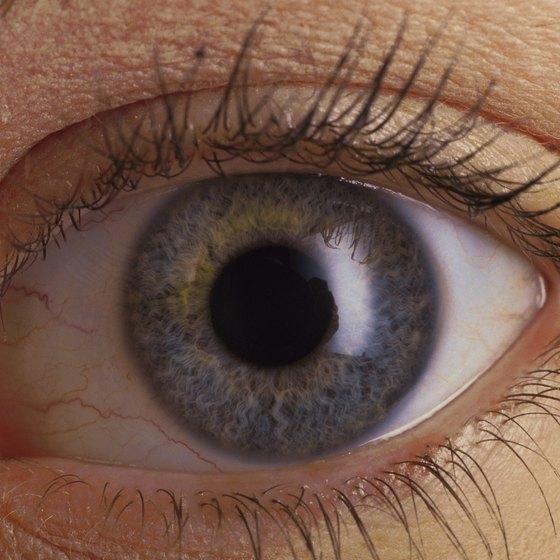 Iris of eye.