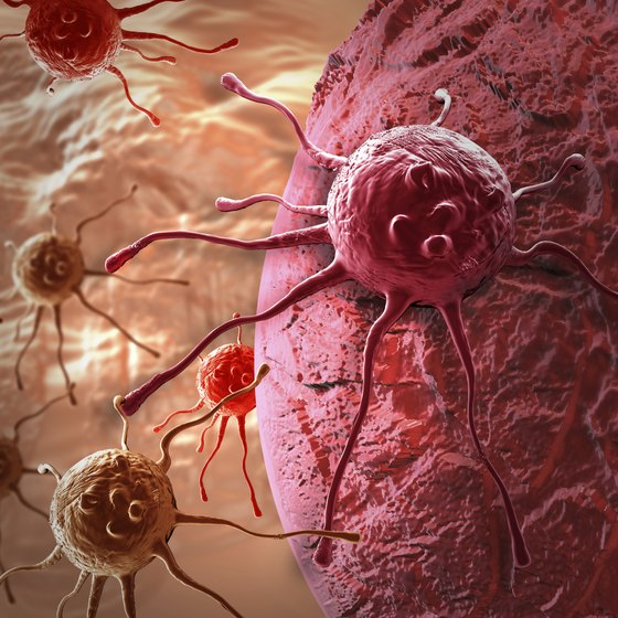 Illustration of cancer cells.