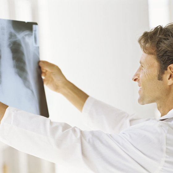 A doctor examines a chest x-ray.