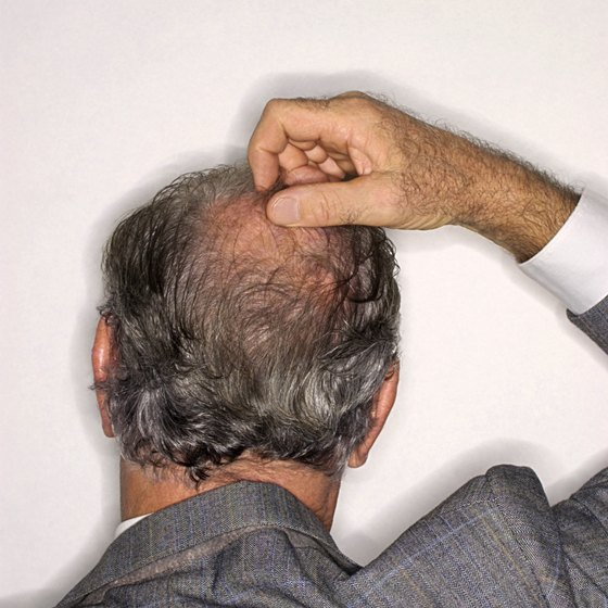 Hair loss affects nearly half of men by the age of 30.