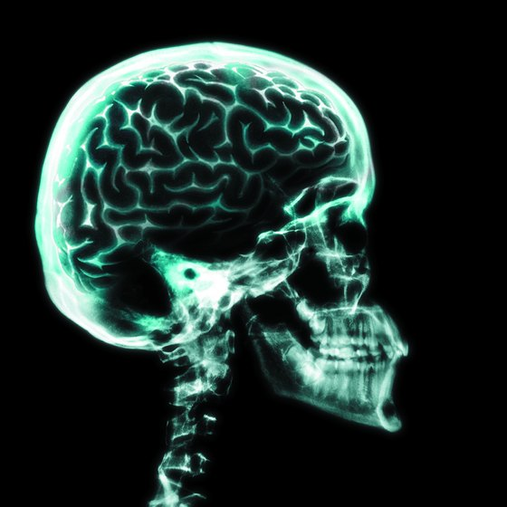 X-ray of the brain and skull