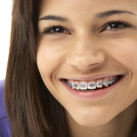 How Much Do Braces For Teeth Cost Healthy Living