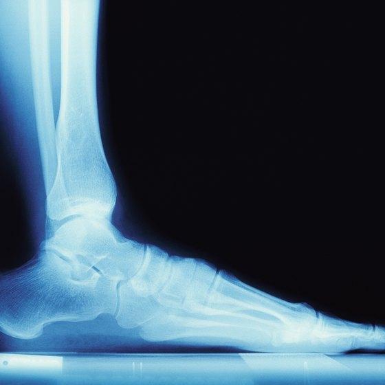 X-ray, flat foot