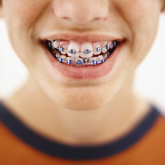 A close up a of a young boys braces.